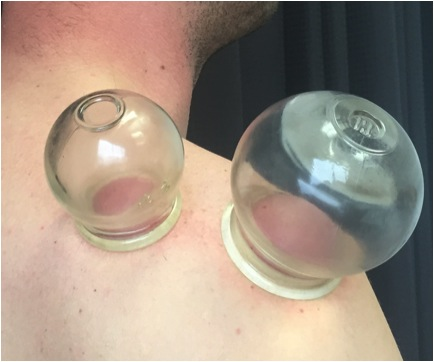 Cupping Treatment Calgary