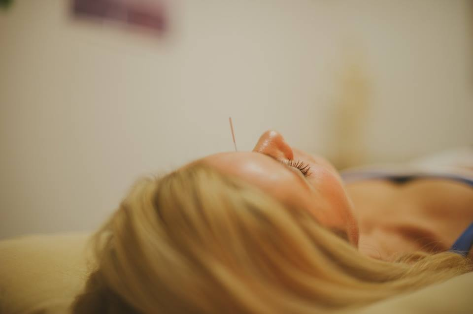 acupuncture needle forehead
